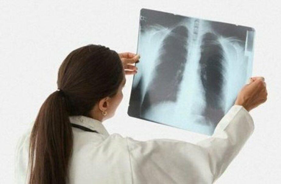 В Калининграде отмечен всплеск пневмонии. Как лечить? - Новости Калининграда