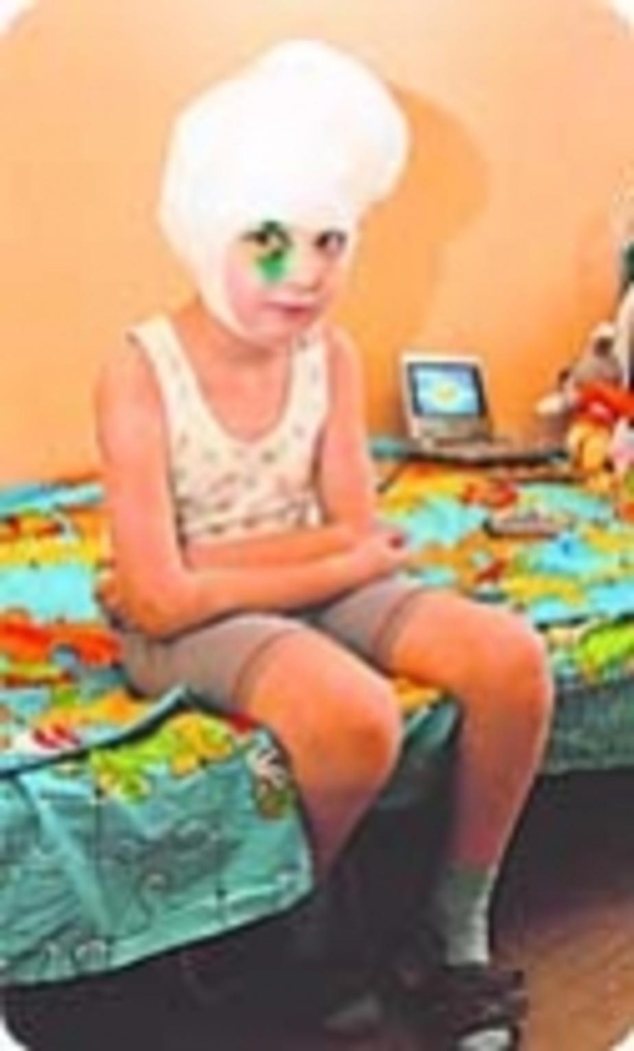 Шок! Стаффорды сильно искусали шестилетнего ребенка - Новости Калининграда