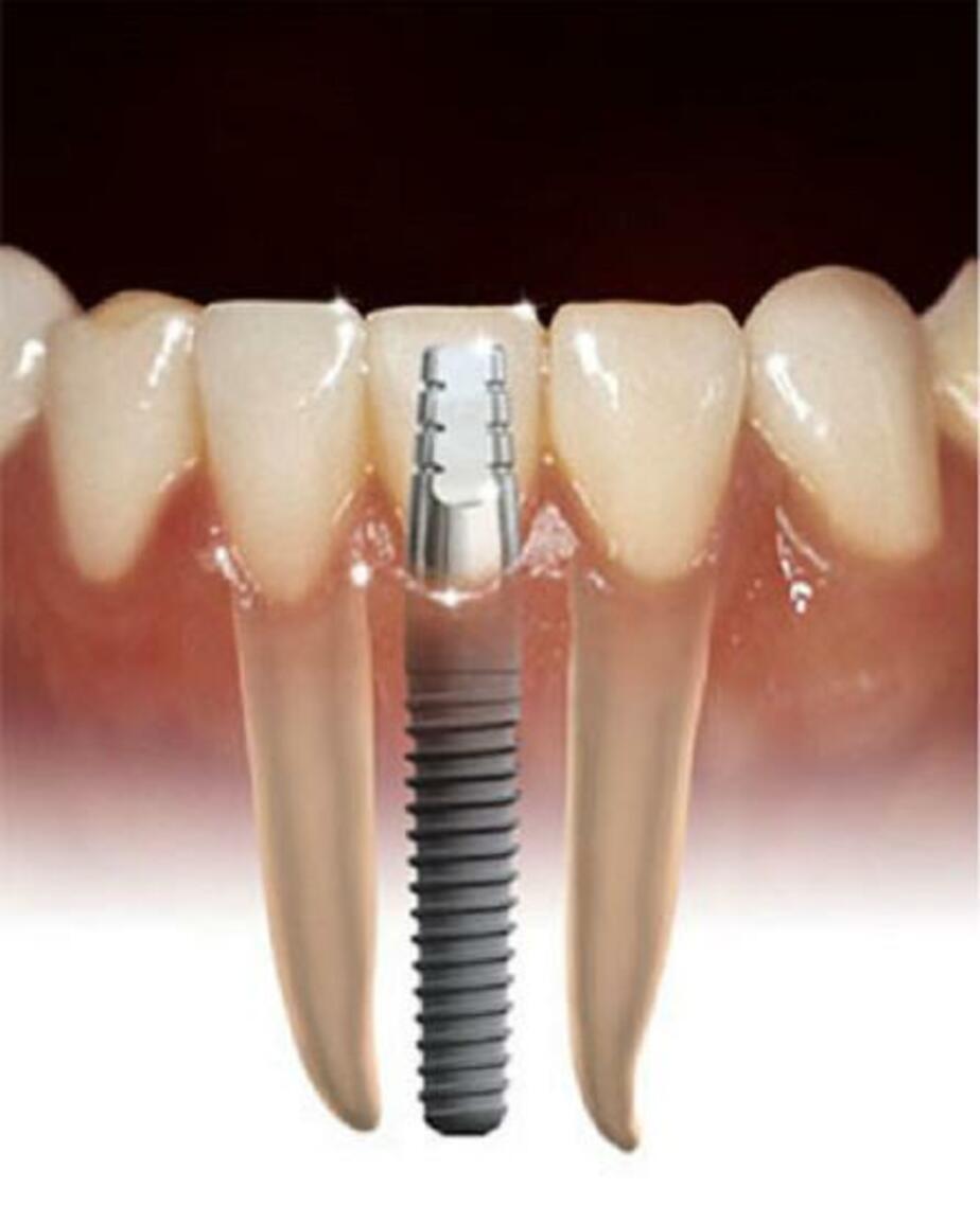 """В Калининграде стоматолог предлагал пациентке """"привыкнуть"""" к боли из-за некачественного имплантата - Новости Калининграда"""