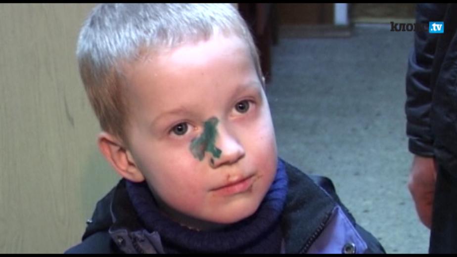 В Калининграде ремонтник ударил ногой в голову 6-летнего ребенка - Новости Калининграда