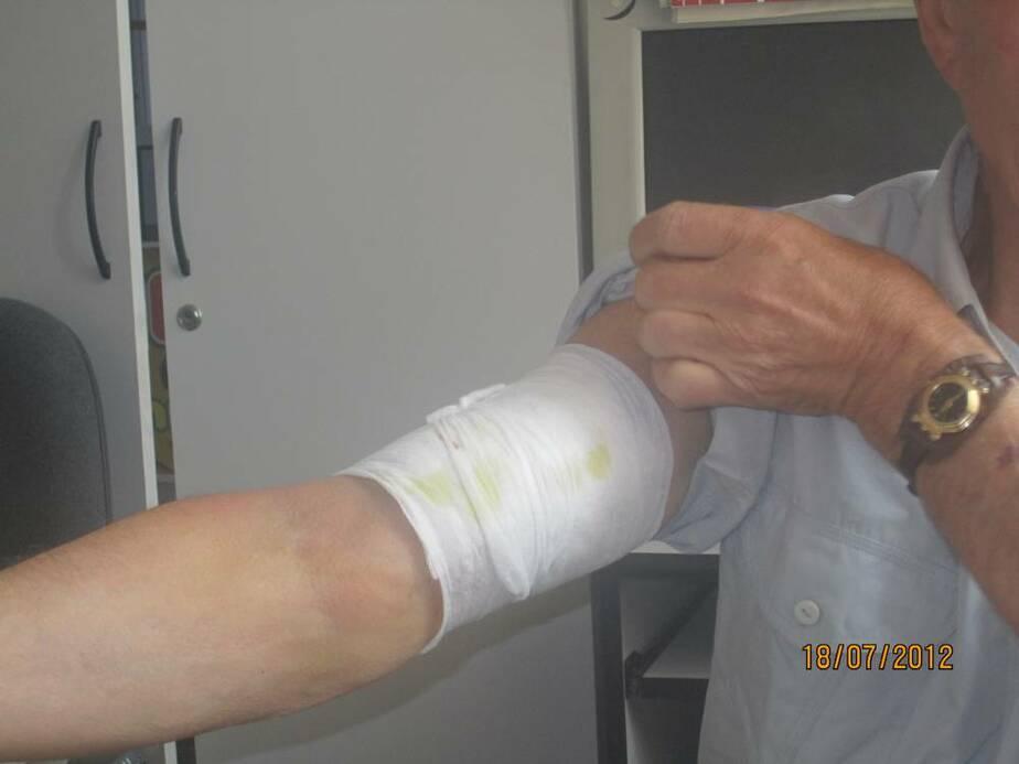 В Калининграде домашний пес бросился на пенсионера и прокусил ему руку - Новости Калининграда