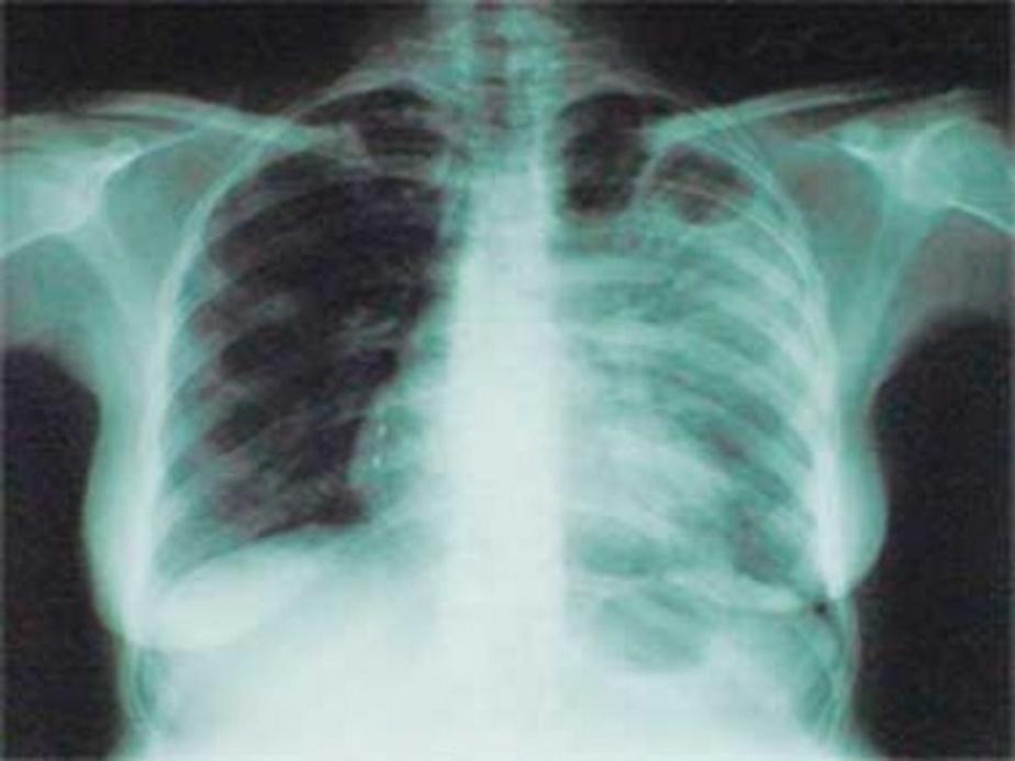 Прокуратура Гвардейска требует госпитализировать 7 бомжей с туберкулезом