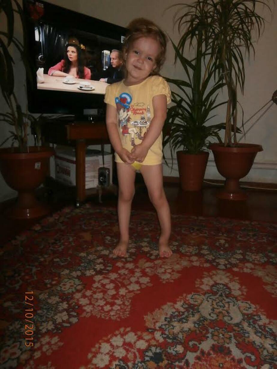 В Калининграде требуются деньги на лечение девочки с пороком развития ноги