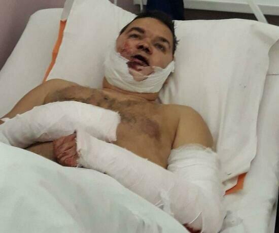 На фото Дмитрий Вобликов после нападения | Фото: личный архив семьи