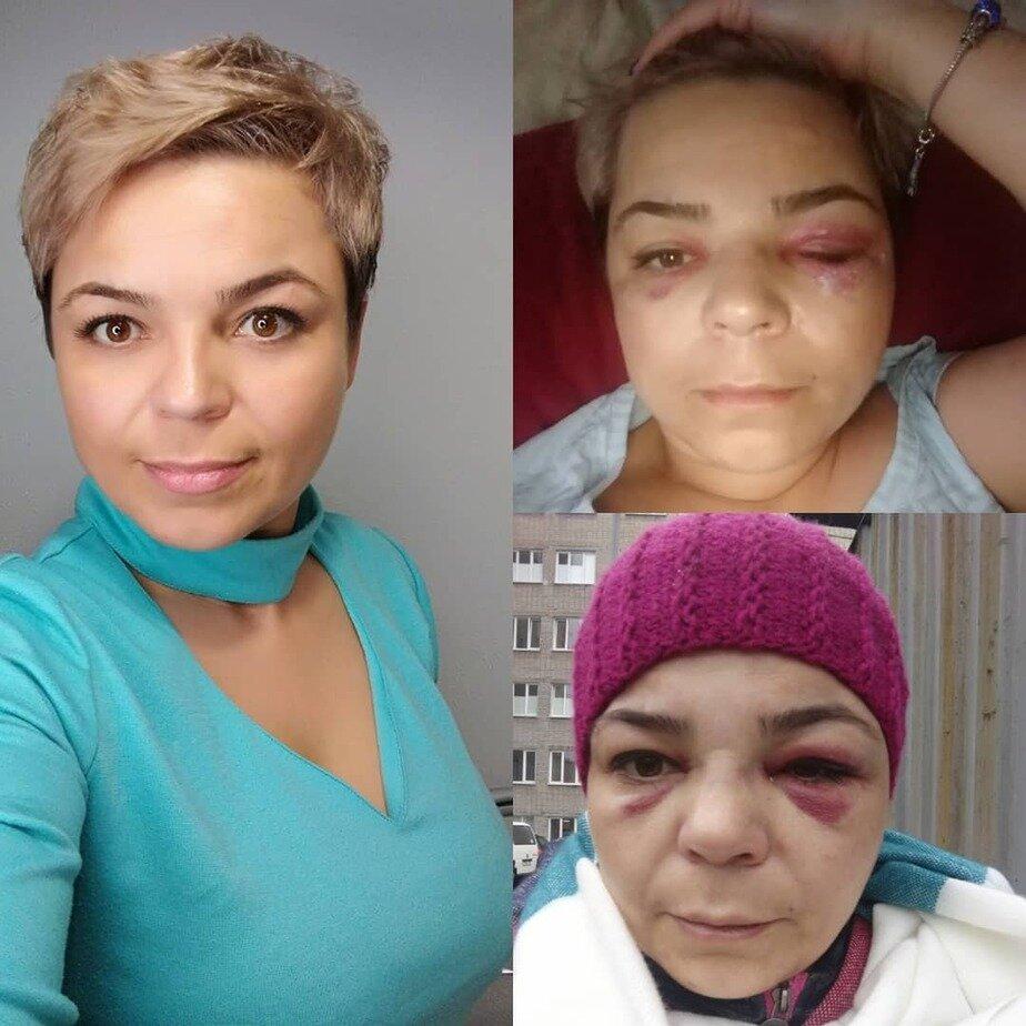 На фото Оксана до происшествия и после  | Фото с личной страницы Оксаны в Instagram