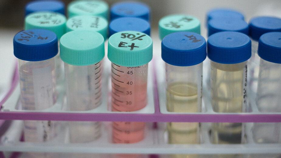"""Учёные назвали признак высокого риска развития рака поджелудочной железы - Новости Калининграда   Архив """"Клопс"""""""