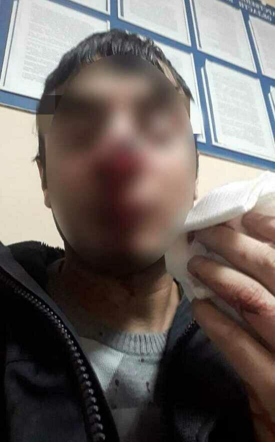На фото: пострадавший мужчина