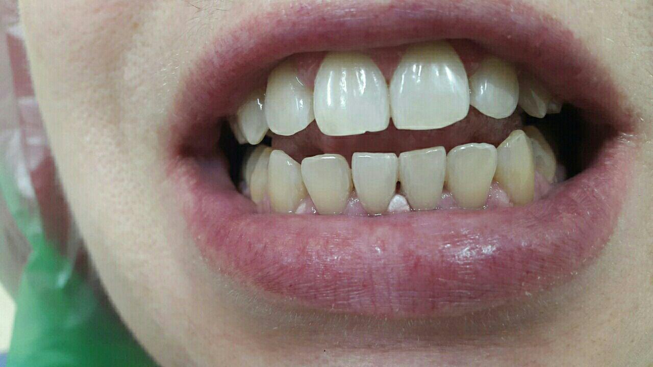 отбеливание зубов кофе