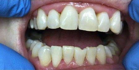 косметическое отбеливание зубов цена